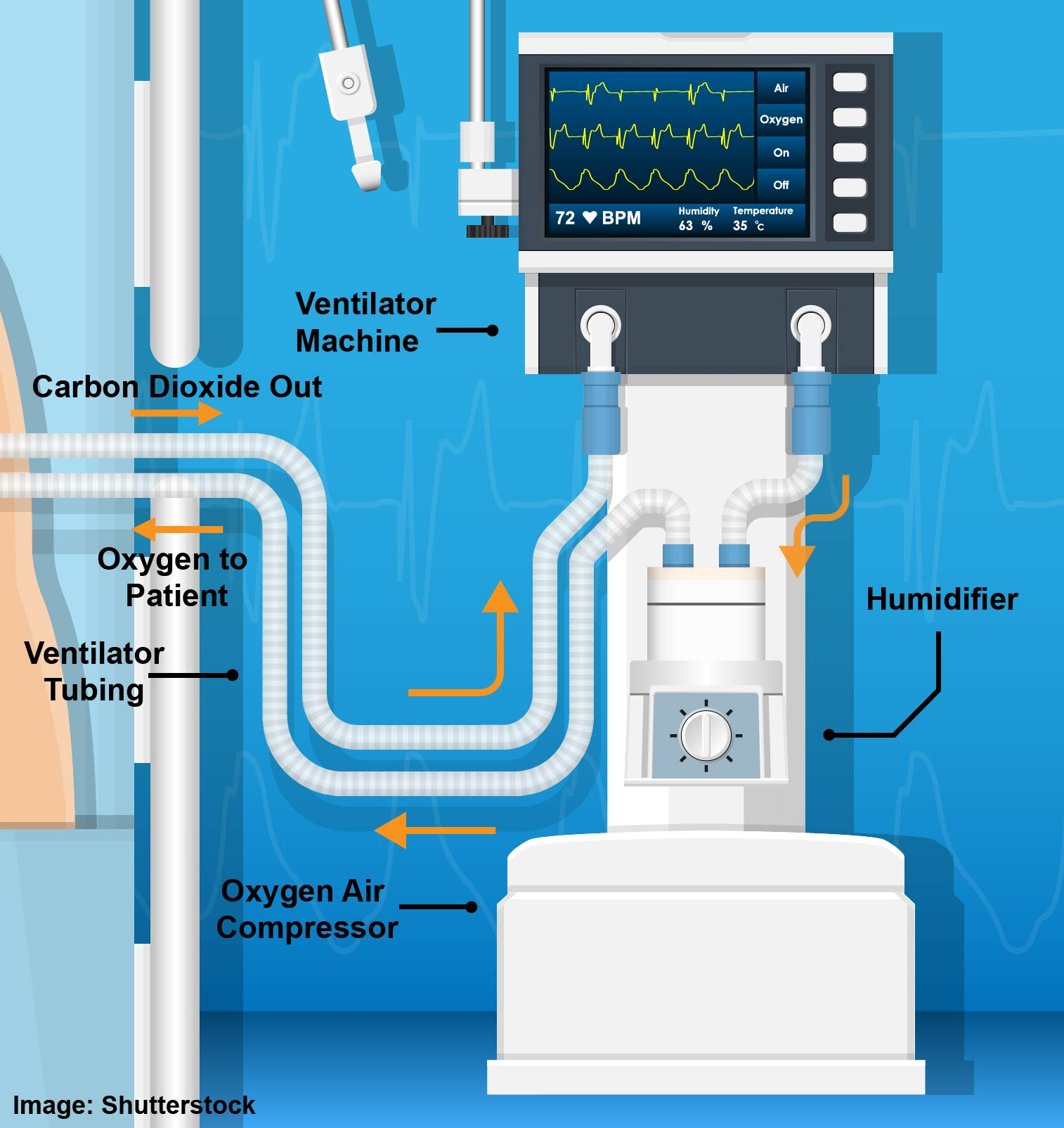 Components and Diagram of a Mechanical Ventilator